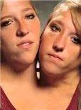 连体姐妹花:艾比和布列塔尼