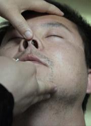 这个办法治鼻炎,一针见血