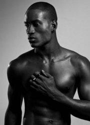 南非黑人皮肤漂白丑闻